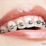 Orthodontics in Elgin IL